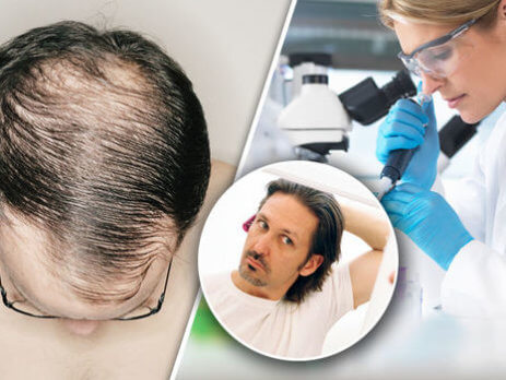 Hair Loss Treatment And Products