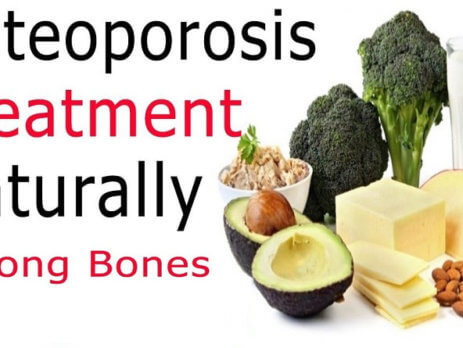 You Can Keep Bones Healthy And Osteoporosis Treatment By Best 7 Foods