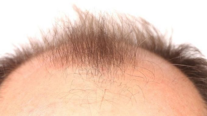 About Hair Loss!